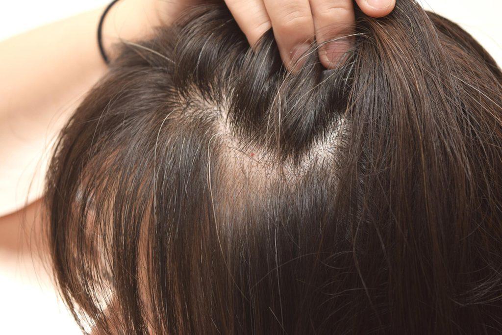 woman with thin hair parting hair